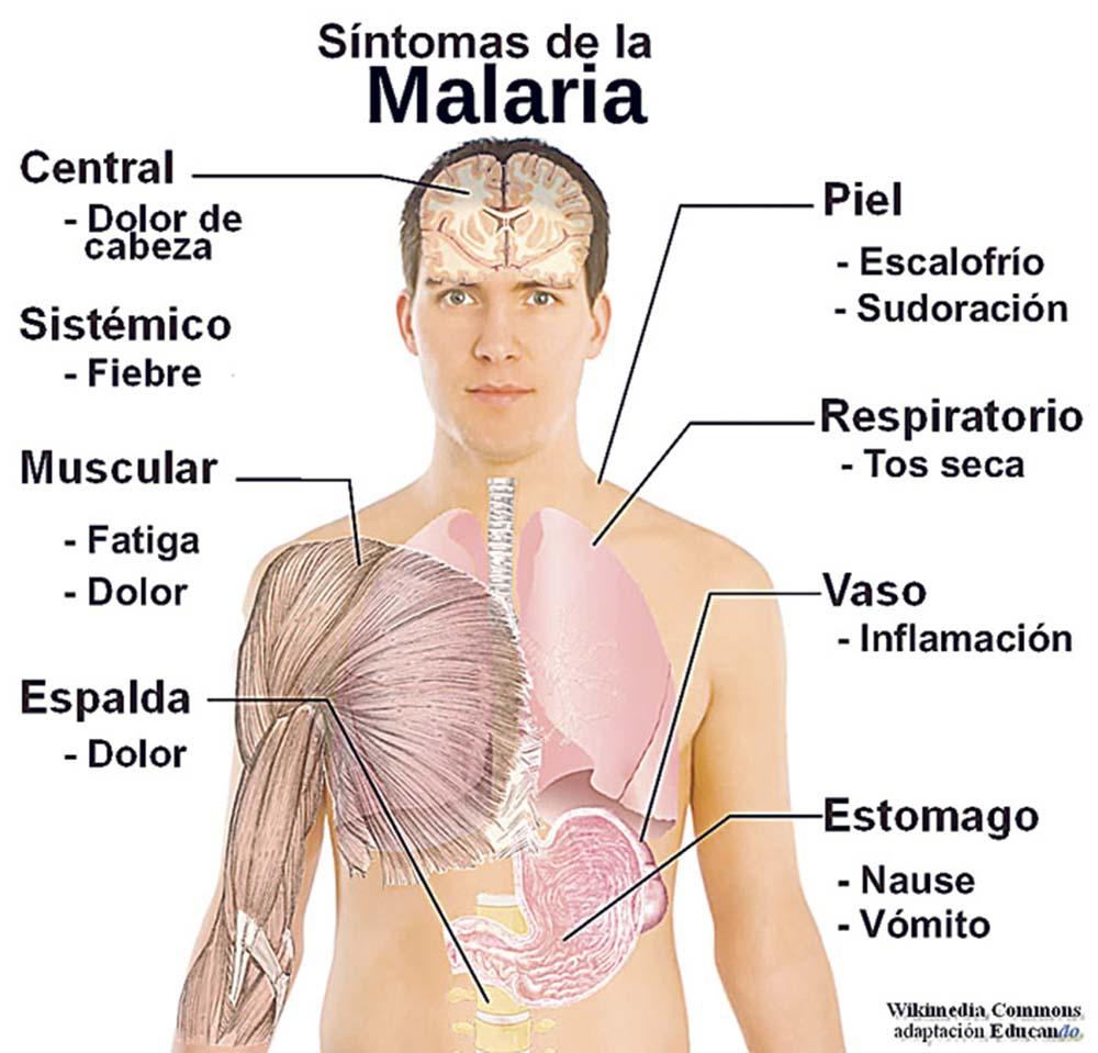sintomas-de-la-malaria